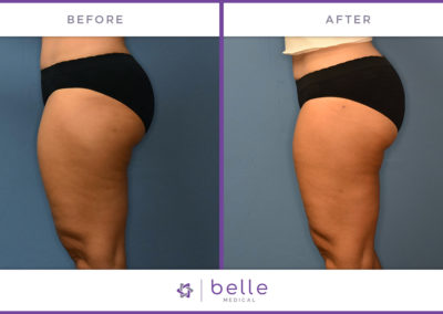 Before and after Belle Medical