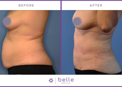 Belle_Medical-Before_After-Body_Sculpting-11-1024x640