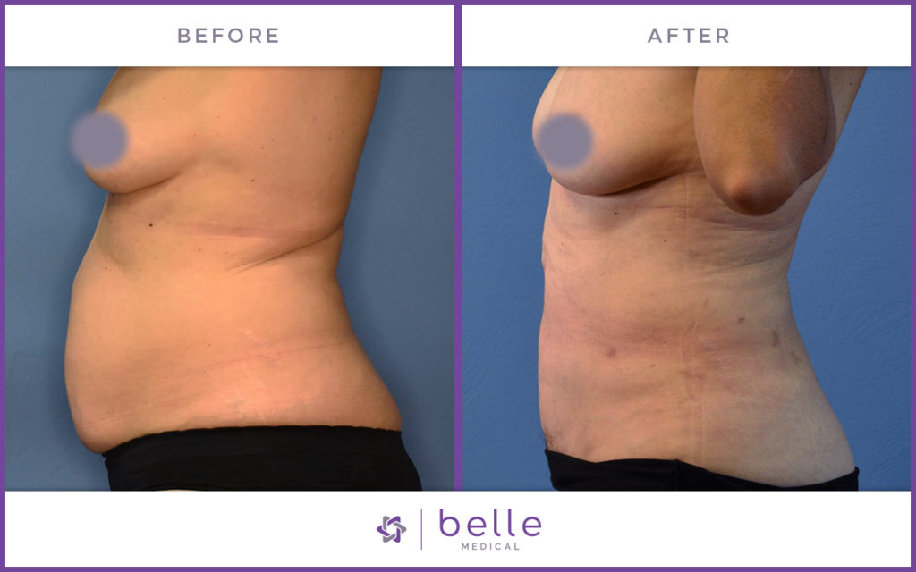 Before Amp After Gallery Natural Body Sculpting Belle