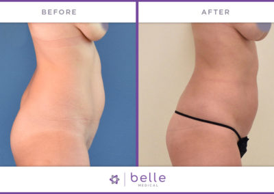 Belle_Medical-Before_After-Body_Sculpting-2-1024x640