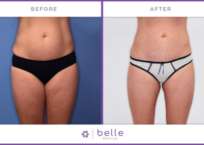 Belle_Medical-Before_After-Body_Sculpting-4-1024x640