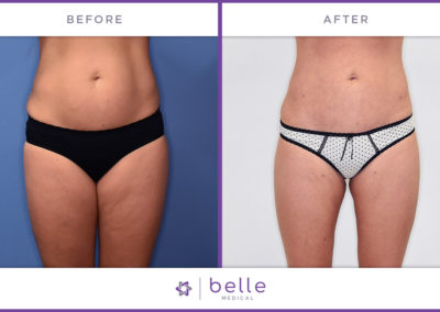 Belle_Medical-Before_After-Body_Sculpting-4