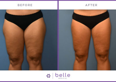 Belle_Medical-Before_After-Body_Sculpting-6-1024x640