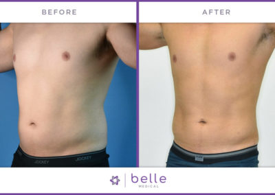 Belle_Medical-Before_After-Body_Sculpting-8-1024x640