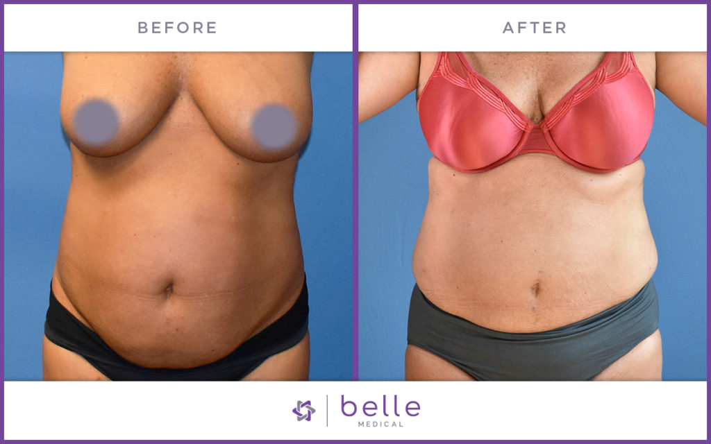 Belle_Medical-Before_After-Body_Sculpting-9-1024x640