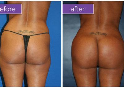 Fat-transfer-buttocks-1-BeforeandAfter-1