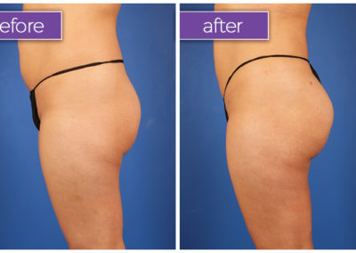 Fat-transfer-buttocks-2-BeforeandAfter-1