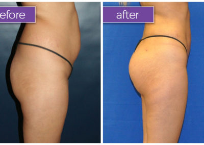 Fat-transfer-buttocks-3-BeforeandAfter