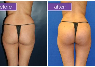 Fat-transfer-buttocks-4-BeforeandAfter