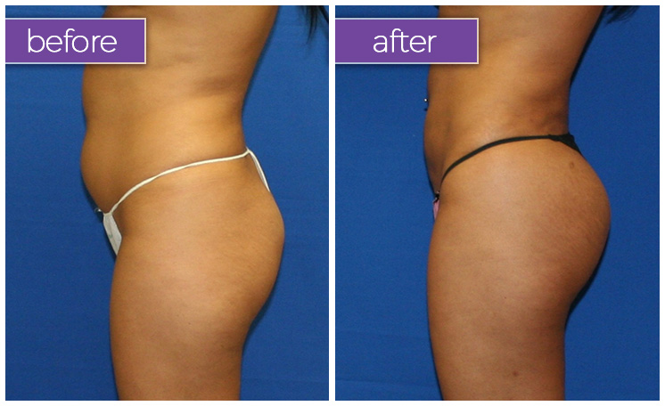 Fat-transfer-buttocks-5-BeforeandAfter