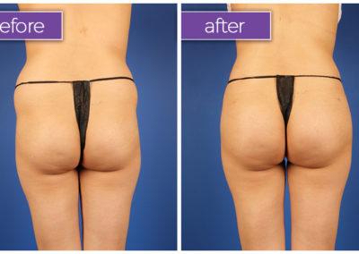 Fat-transfer-buttocks-6-BeforeandAfter