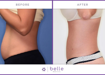 Simple HD body Sculpting Before and After