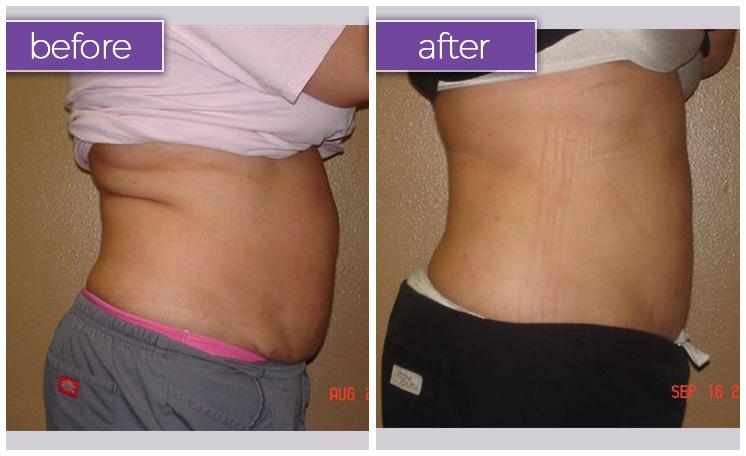 abdomen-back-female-1-body-sculpting-belle-medical