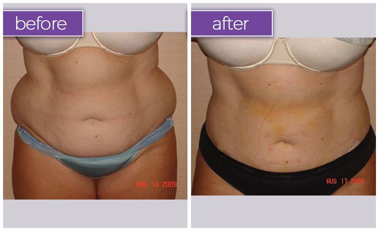 abdomen-female-1-body-sculpting-belle-medical