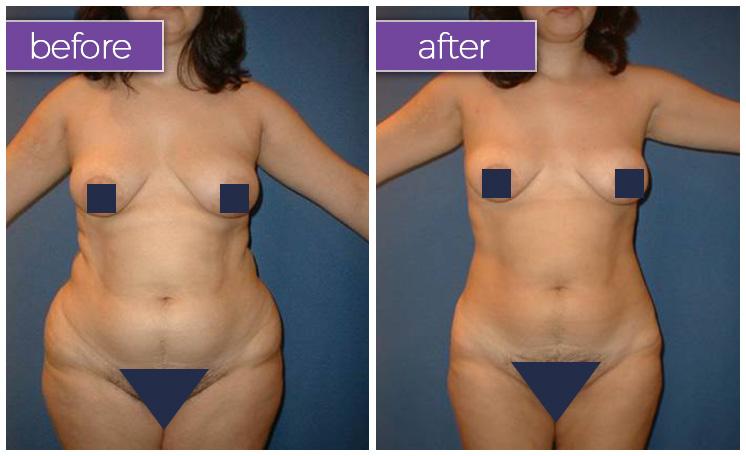 abdomen-hips-female-3-body-sculpting-belle-medical