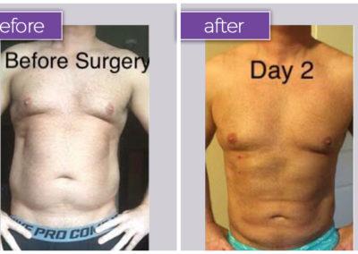 abdomen-male-2-body-sculpting-belle-medical