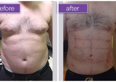 breasts-abdomen-male-1-body-sculpting-belle-medical