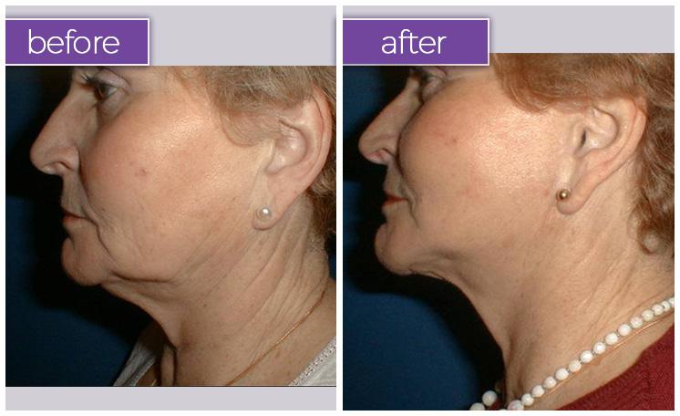chin-female-13-body-sculpting-belle-medical