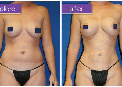 fat-transfer-breasts-1-BeforeandAfter-1