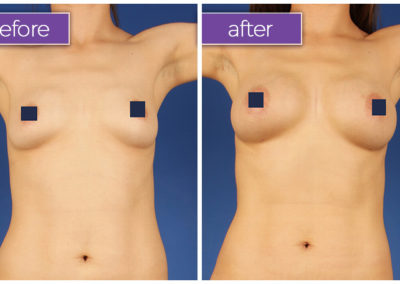 fat-transfer-breasts-4-BeforeandAfter