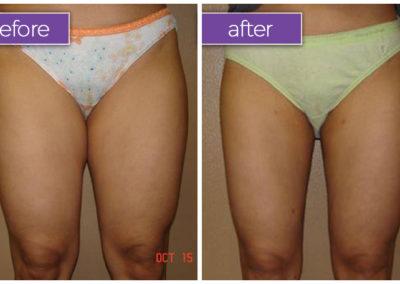legs-female-8-body-sculpting-belle-medical