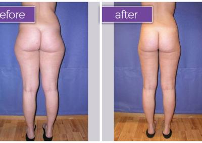 legs-hips-female-15-body-sculpting-belle-medical