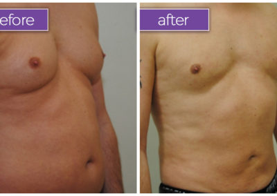 vaser-lipo-chest-male-BeforeandAfter