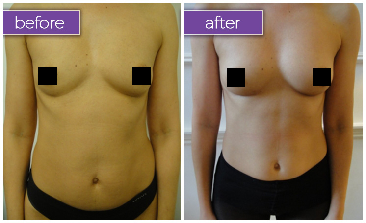 fat-transfer-breasts-1-BeforeandAfter-box