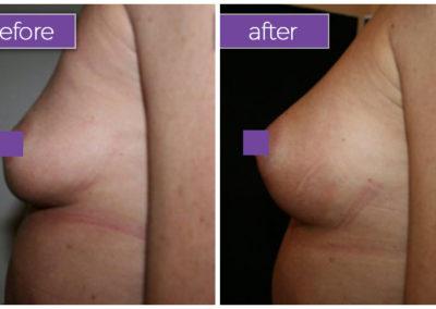 fat-transfer-breasts-2-BeforeandAfter-box