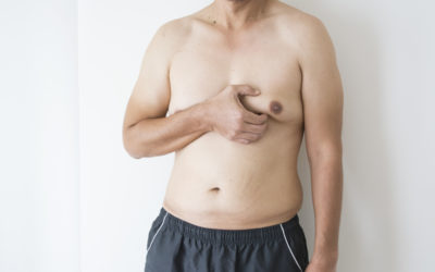 Gynecomastia FAQs: Causes and Treatments