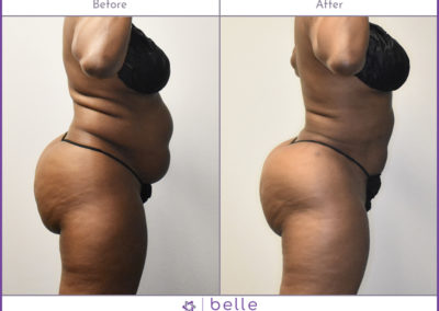 BM-WOC-Mom-PoochBefore-After